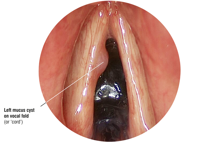 Laryngoscope image: mucus cyst on vocal fold