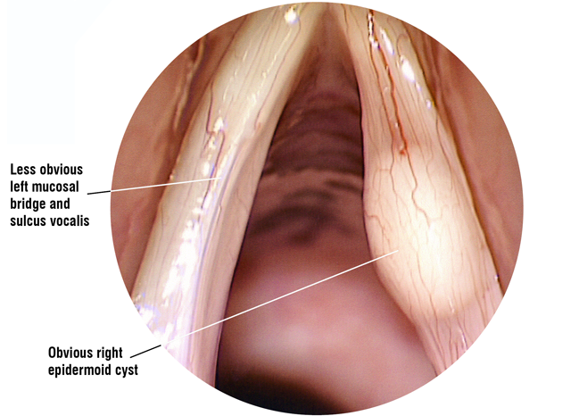 Laryngoscope image: mucosal bridge – epidermoid cyst