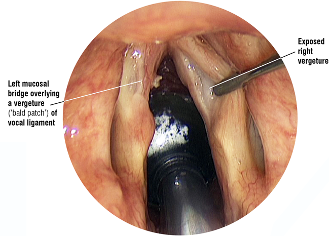 Laryngoscope image: vergature